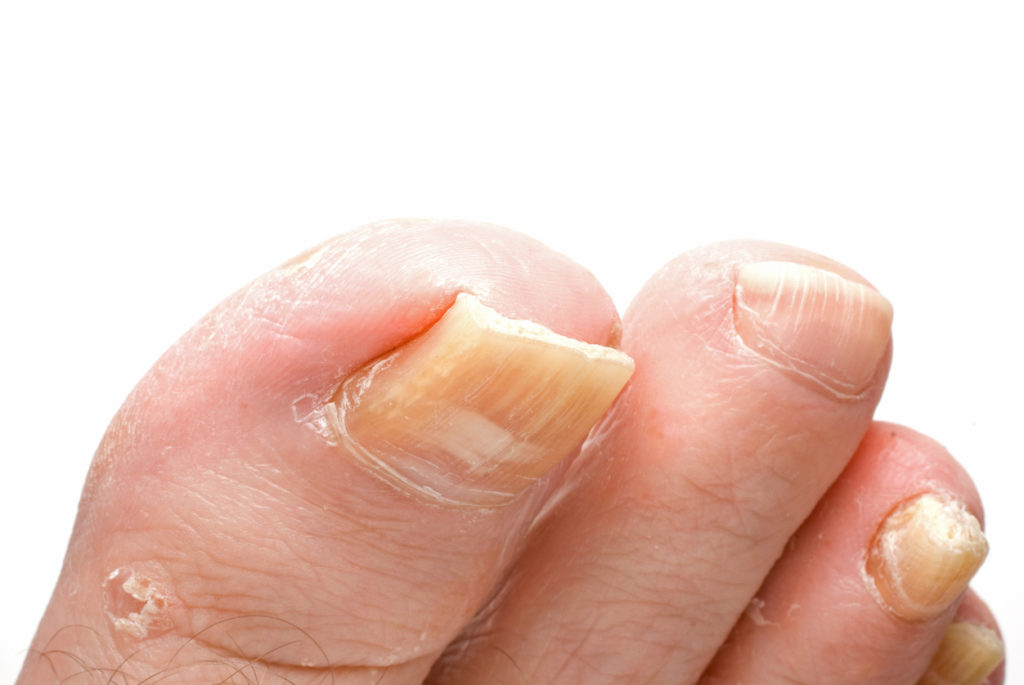 Mycose d'ongles